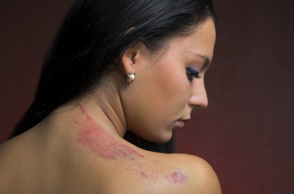ri personal injury lawyer scarring  Scarring Claims scarring claims 1024x677