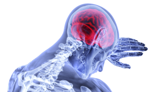 How Much Should Your Head Injury Claim Be?