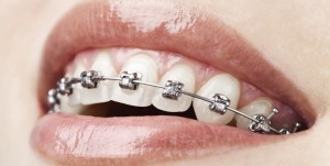 Providence Medical Malpractice Lawyer: Suing an Orthodontist