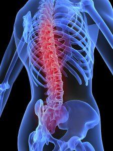 spinal cord injury lawsuit spinal cord injury lawsuit Plymouth Spinal Cord Injury Lawyer: Spinal Cord Injury Lawsuit Explained image5 10