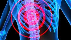 Plymouth Spinal Cord Injury Lawyers: 3 Things About Spinal Cord Injury