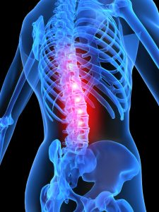 Hyannis Spinal Cord Injury Attorney: Spinal Cord Injury Prevention &Treatment